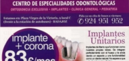 Qu es un implante dental